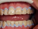 Bělení zubů - v průběhu