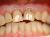 Estetická stomatologie - před