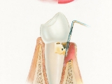 Hygiena - středně pokročilá paradentóza