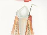 Hygiena - zánět dásně
