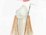 Hygiena - zdravá dáseň