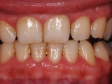 Hygiena - zánět dásně za týden