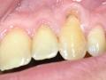Parodontologie - krytí krčku před