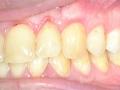 Parodontologie - krytí krčku po operaci